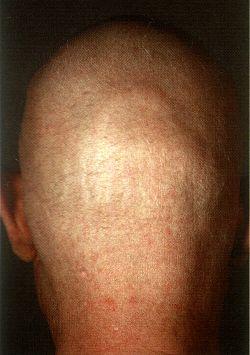 Die Rezepte vom Haarausfall bei den Frauen das Forum